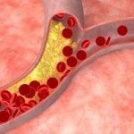 Conoce Los Remedios Para Bajar El Colesterol Y La Presion Alta ✉ Recetas Para Presion Alta Y